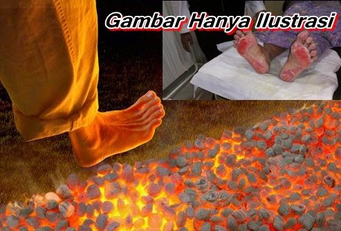 Obat Luka Kulit Kaki Terbakar Ke Dalam Tungku